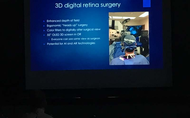 3d retina surgery and wide field imaging, presentation