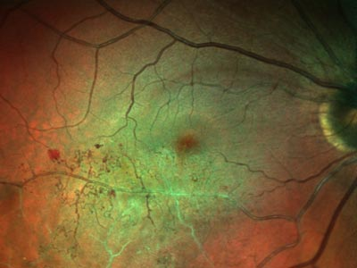 crvo, central, retinal, vein, occlusion