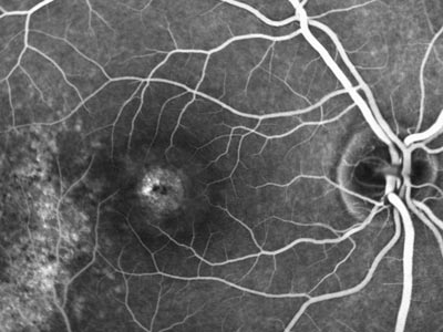 image of macular hole, fluorescein, angiography, dye